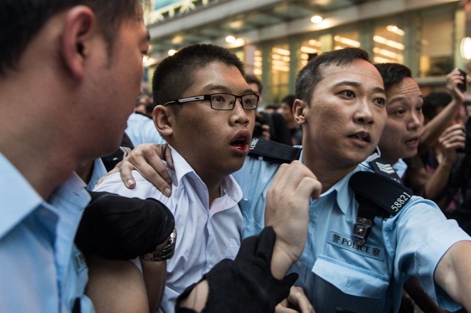 An injured pro-democracy protestor is escorted out of his tent by police as onlookers shout at him in the Kowloon district of Hong Kong on October 3, 2014. Hong Kong student leaders have called off talks with the government aimed at bringing an end to mass pro-democracy rallies, accusing police of failing to act over violent attacks on their protest camps by opposition crowds that included Beijing supporters.    AFP PHOTO / ANTHONY WALLACE